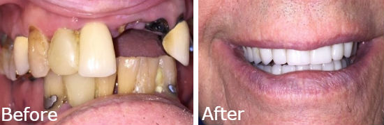 before and after all on 4 dental implants oak brook, il